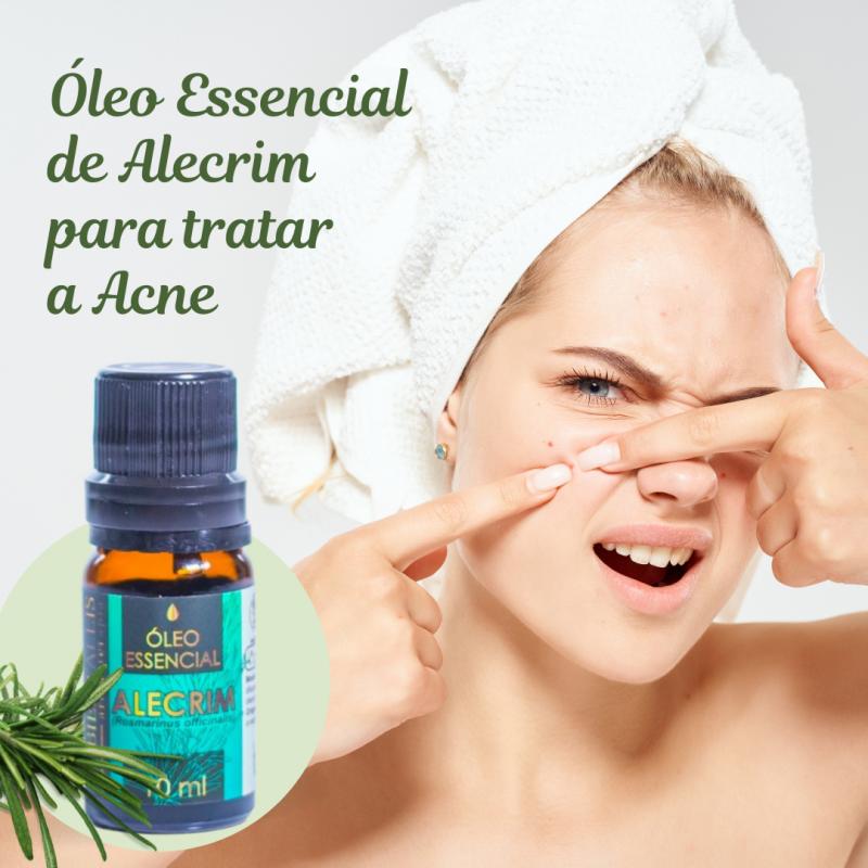 Aromaterapia - Como tratar a Acne com Óleo Essencial de Alecrim